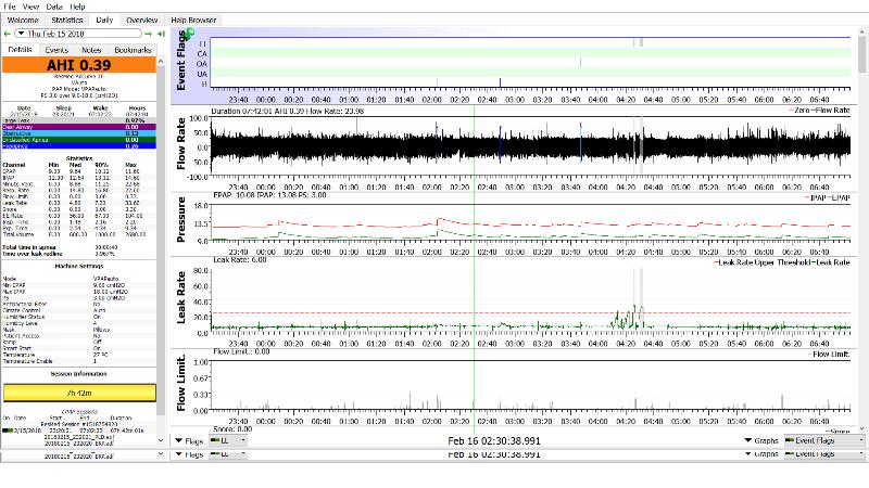 [Image: Sleepyhead_Chart_Overview.png]